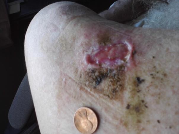 11/24/11 10:04 Fat freddy's diabetic ulcer progress day #2